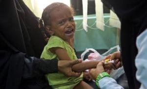 بالفيديو ..الأمم المتحدة على تويتر ..اليمن على شفا أسوأ مجاعة فى العالم