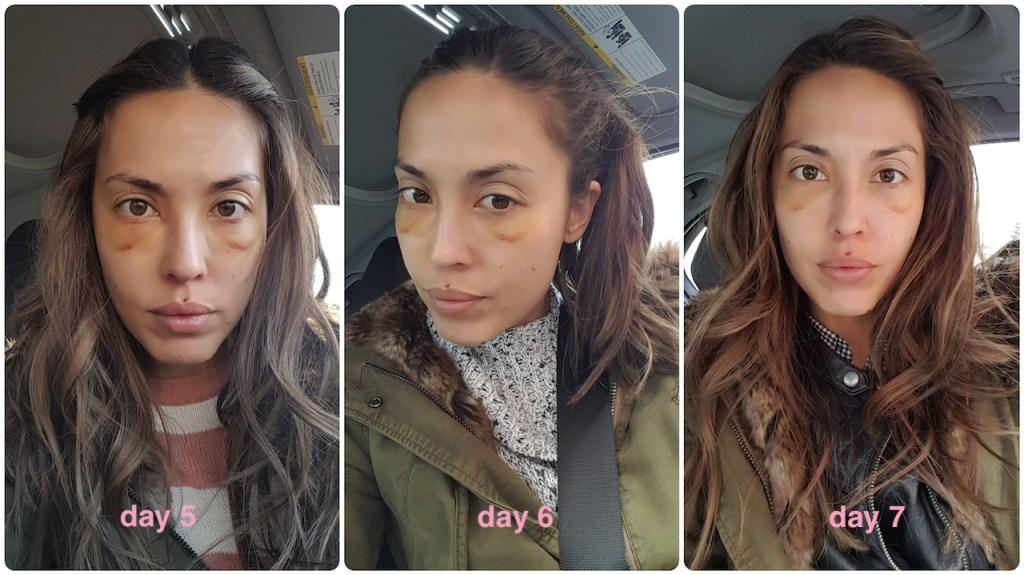 How to hide eye bags permanently   hello flawless | aloha