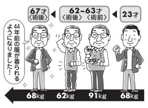 昔91㎏の肥満体、腹腔鏡で胃を全摘
