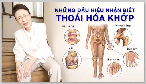 Các triệu chứng của thoái hóa khớp xuất hiện tại các khớp
