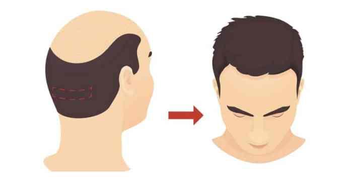 السياحة العلاجية لزراعة الشعر في تركيا