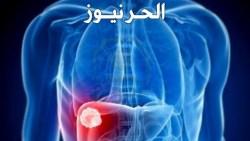 ثلاث علامات تنذر بالإصابة بمشاكل في الكبد