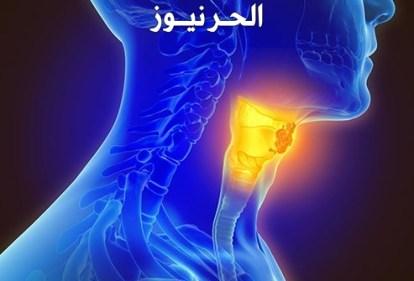 هل سرطان الحنجرة قاتل