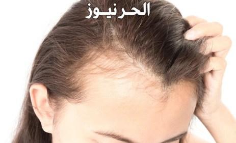 علاج فراغات الشعر الاماميه للنساء