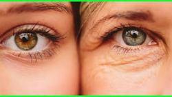 علاج تجاعيد البشرة (الشيخوخه المبكره)