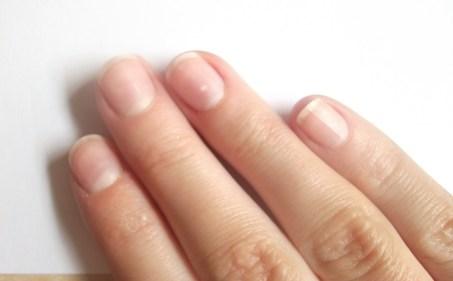 تفسير حلم فرقعة الأصابع في المنام
