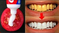 نصائح مهمة لتبييض الأسنان والعناية بها