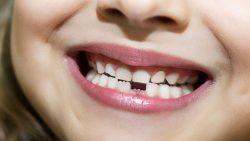 تفسير حلم وقوع الاسنان للعزباء