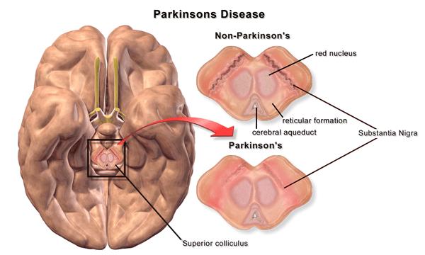 Mengenal Penyakit Parkinson image