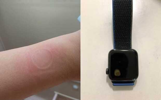 Apple Watch SE tiene un grave problema de sobrecalentamiento