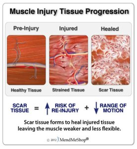 muscle-injury-tissue-progression-large