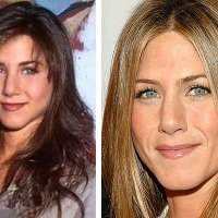 Jennifer Aniston's little Plastic Surgery Tweaks