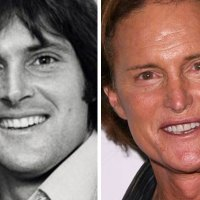 BAD Plastic Surgery Awards - Bruce Jenner