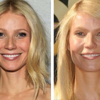 Gwyneth Paltrow Denies using Botox or Fillers!