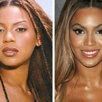 Has Beyonce Had Plastic Surgery?