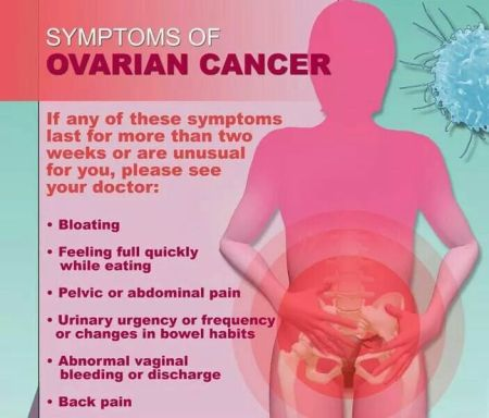 ovarian cancer, cancer, ovarian cancer awareness, ovarian cancer signs and symptoms