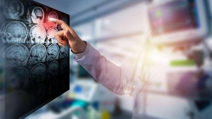 Tips for preventing stroke
