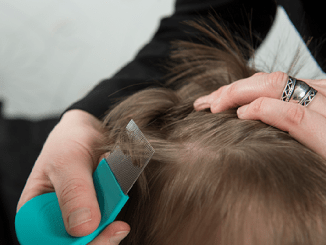 tips for lice treatment