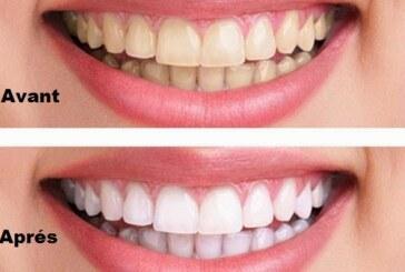 Des dents blanches naturellement en 3 minutes !