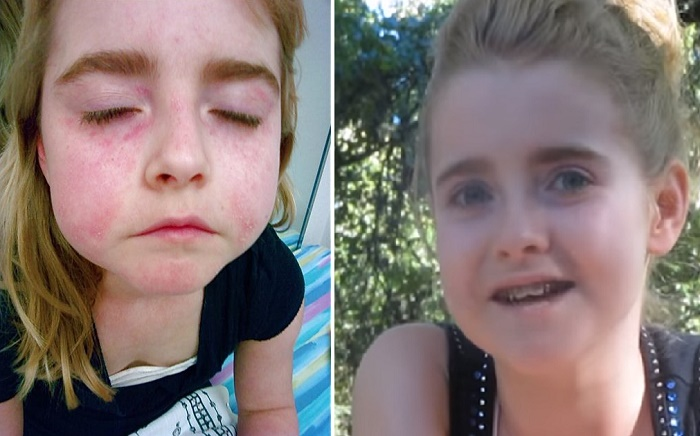 """Isabel was able to overcome an """"incurable"""" disease through dietary changes and supplements."""