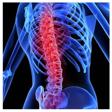 Spinal Cord Injury - Altizer Law