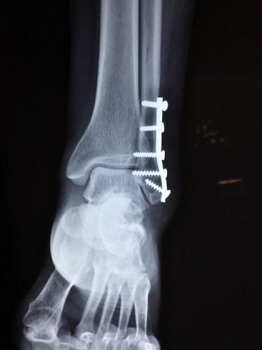 Heel Injury in Broadside Car Crash - Altizer Law