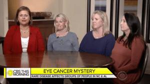 ocular melanoma women