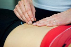 acupuncture treatment in practice