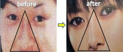 真木よう子 鼻 整形検証