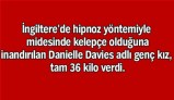 danielle-davies-mide-kelepçesi