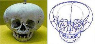 Peru'da bulunan kafatası Kafatası Peru'da (Ica) bulunmuştur. İlk bakışta günümüz insanının kafatasına benzemektedir, ancak soru işaretlerine yol açan bir kaç etken öne çıkmaktadır. Göz boşlukları günümüz insanının göz boşluklarından %15 daha büyüktür. Beynin yer aldığı boşluk ise 2600 ccm ile 3200 ccm arasında değişmektedir. Şu andaki insanın kafatasındaki beyin beyin boşluğu kapasitesi 1450 ccm 'dir