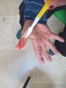 ejercicio5-hipersensibilidad-palma-de-la-mano