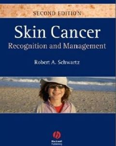 Skin Cancer Recognition and Management 2nd Edition PDF
