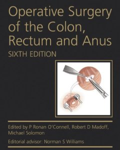 Operative Surgery of the Colon Rectum and Anus 6th Edition PDF