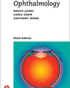Lecture Notes on Ophthalmology PDF