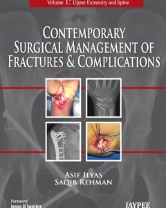 Contemporary Surgical Management of Fractures and Complications 2 Volume Set PDF