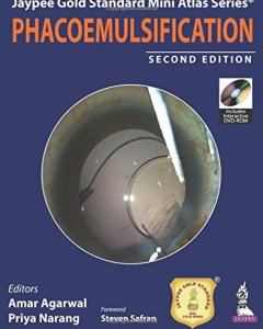 Phacoemulsification 2nd Edition PDF