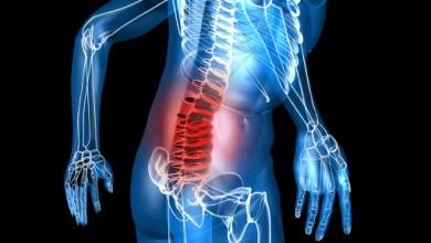 Photo of La osteoporosis se puede prevenir con una buena alimentación