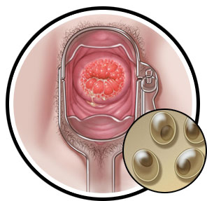 Les symptômes chlamydia femme