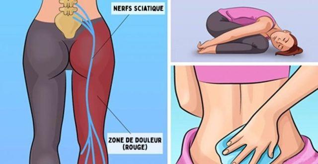 Remède naturel proposé par AMANSIBIO pour combattre la douleur du nerf.