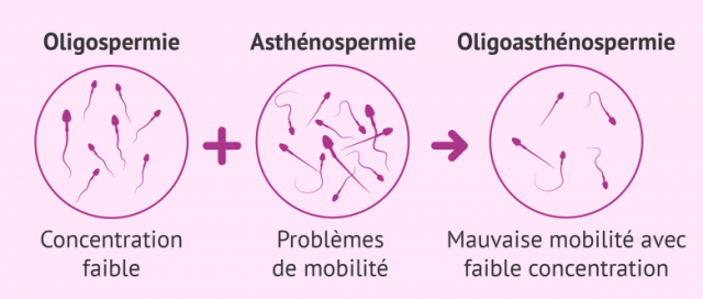 asthénospermie sévère
