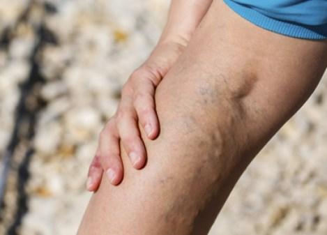 dilation variqueuse des veines