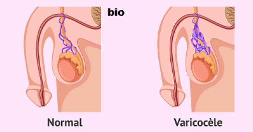 Varicocèle testiculaire : un traitement naturel pour soigner cela