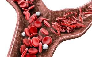 Différents types de drépanocytose