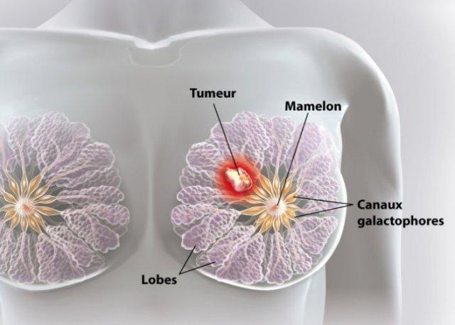 Comment soigner le cancer Amansibio