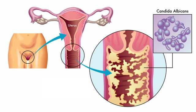 Montée d'une infection vers l'utérus
