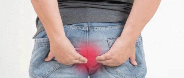 prolapsus rectal et hémorroides