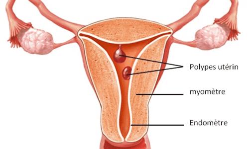 polype utérin traitement naturel