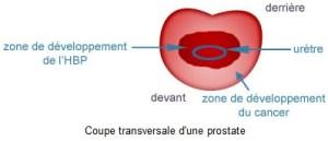 traitement cancer de la prostate