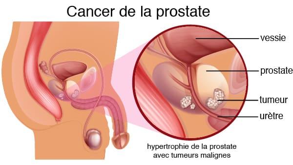 comment soigner le cancer de la prostate par les plantes africaines